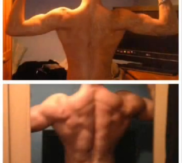 Extreme-skinny-transformation