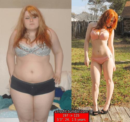 Girl-weight-loss-transformation (30)