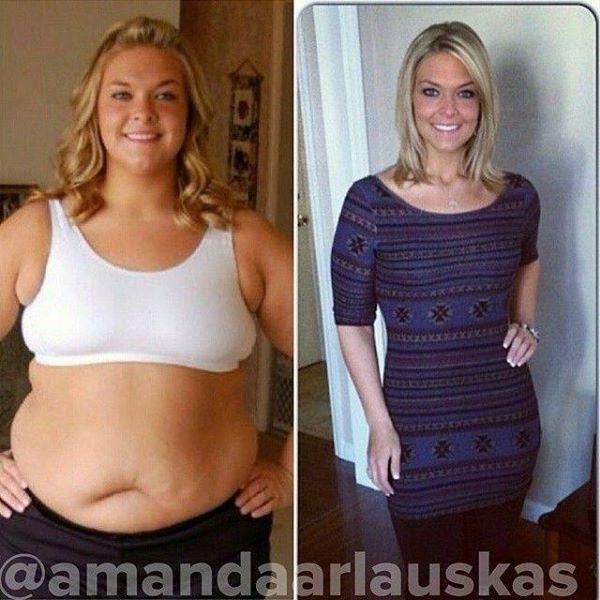 Girl-weight-loss-transformation (4)