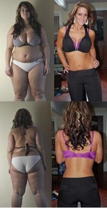 Girl-weight-loss-transformation (5)